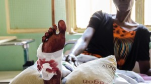 A victim of an attack by government soldiers in Wau South Sudan in 2016